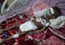 Milhões passando fome no Iêmen, alerta agência de alimentos da ONU